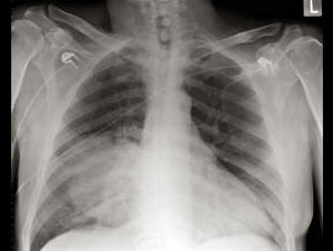 Streptococcus Pneumoniae diagnosis