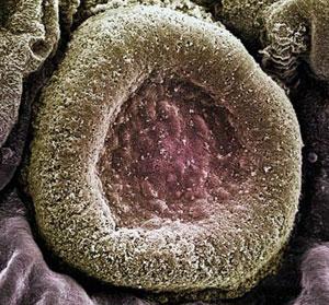 Streptococcus Pneumoniae therapy